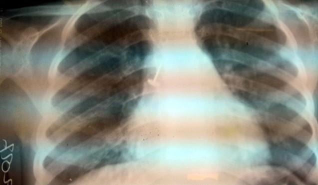 Der Nagel in der Lunge